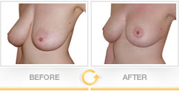 Breast lift before after picture - Patient 1