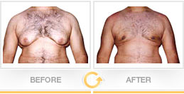 Male breast reduction before after picture - Patient 1