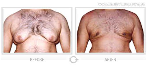 Manhattan breast reduction