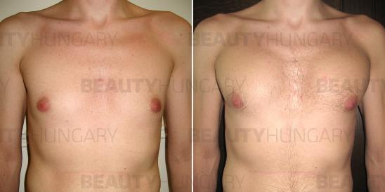 man muscle implant