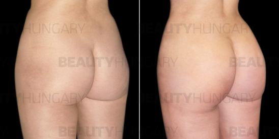butt implant