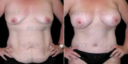 breast lift surgery tummy tuck