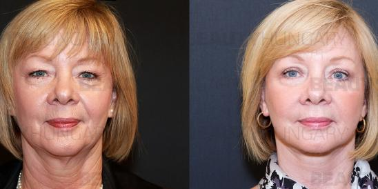 face lift for women