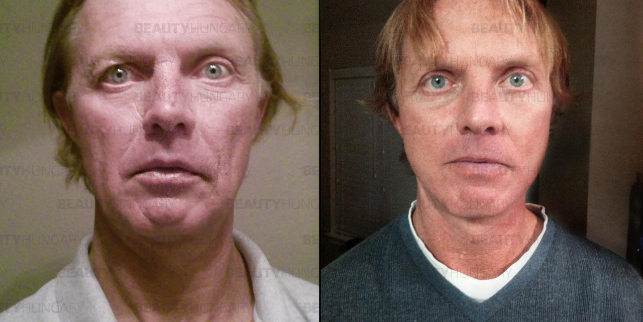 facelift surgery prices